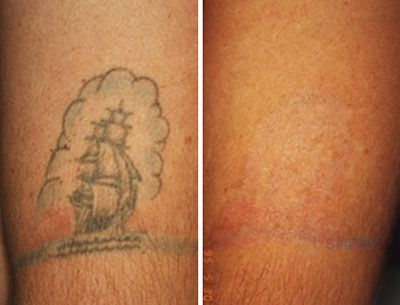 Laser tattoo removal application guangzhou svatar for Does tattoo removal cream work